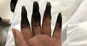 Evini temizlemek isterken 8 parmağından oluyordu!