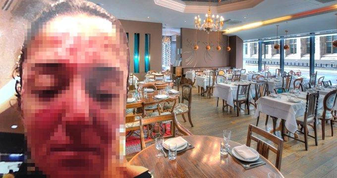 Ünlü restoran sahibi, çalışanının yüzüne kezzap attı!