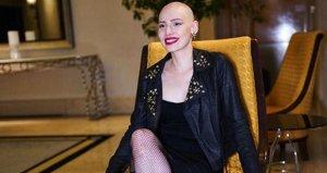 Neslican Tayın TEDx konuşmasındaki sözleri gündem oldu: Benim için sol bacağınızı da sevin