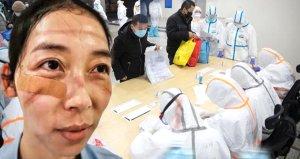 Koronavirüs sağlık görevlilerini de vurdu! Rakamlar açıkladı