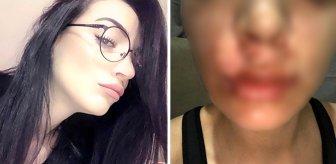 Yüzüne lavabo açıcı patlayan kadın, üretici firmaya 1,5 milyonluk tazminat davası açtı